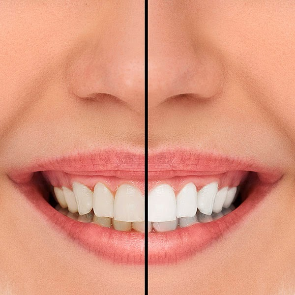 Teeth Whitening Can Get You Ready For Your Special Day
