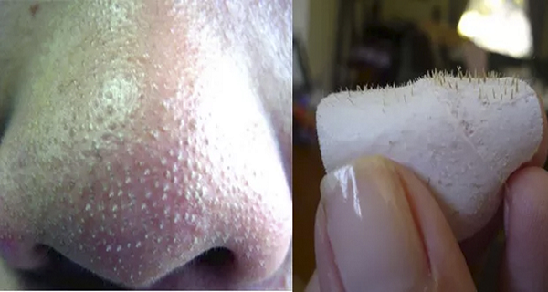 how-to-get-rid-of-blackheads-on-nose-fas