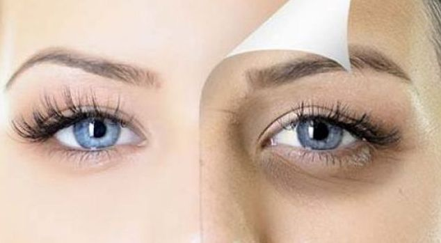 How to Remove Dark Circles Under and Around the Eyes