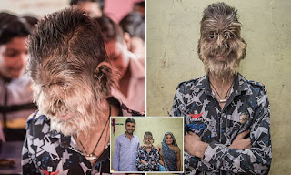 Hombre lobo en la india.