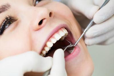 tips cara mengobati sakit gigi berlubang
