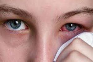 Gejala Penyakit Mata yang Tidak Boleh Diabaikan