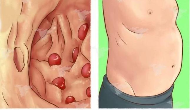 Stomach Is Swollen