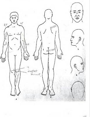 recording of bruises to patient