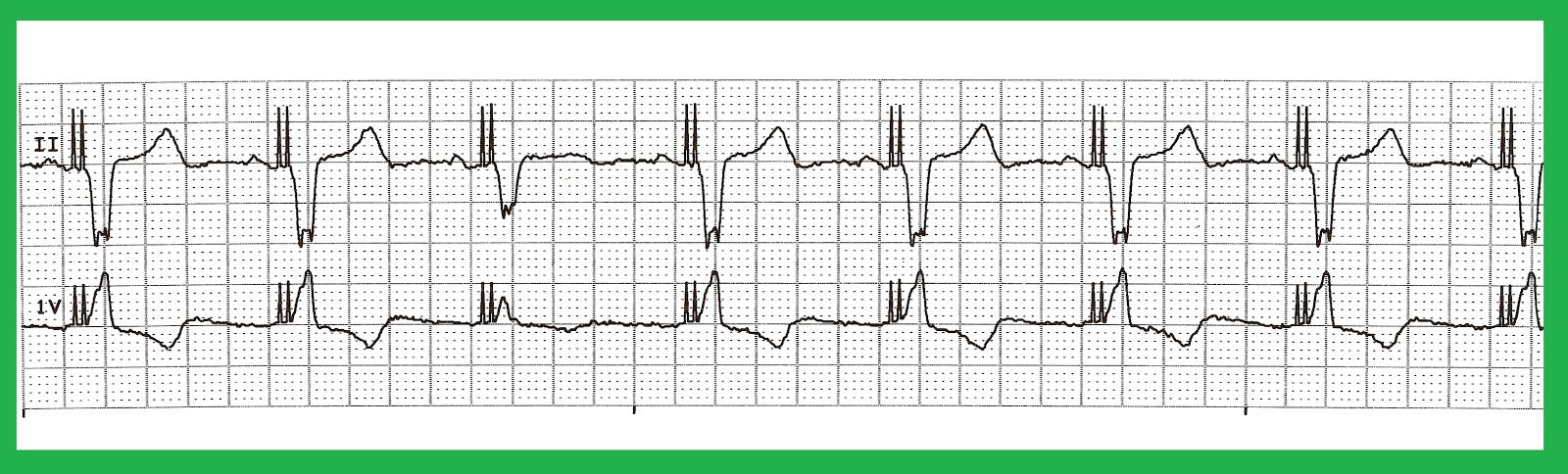 Float Nurse: EKG Rhythm Quiz 272