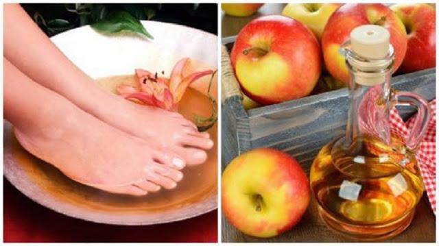 6 Manfaat Rendam Kaki dengan Air Cuka Mengilangkan aroma tidak sedap