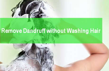 remove dandruff flakes without washing hair