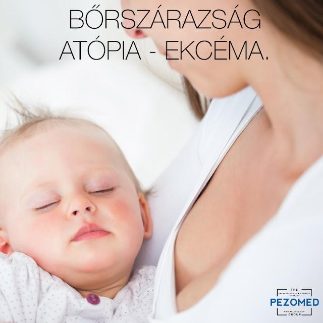 http://www.psorioderm.com/hu/hirek-publikaciok/borszarazsag-atopia-ekcema:259