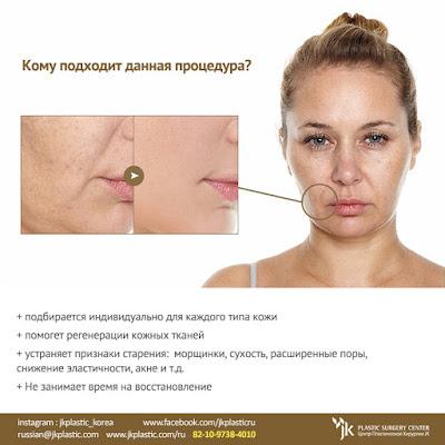 инъекции молодости, омоложение без скальпиля,  уход за кожей, эстетические процедуры