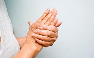 Biểu hiện bệnh phong thấp đổ mồ hôi tay chân