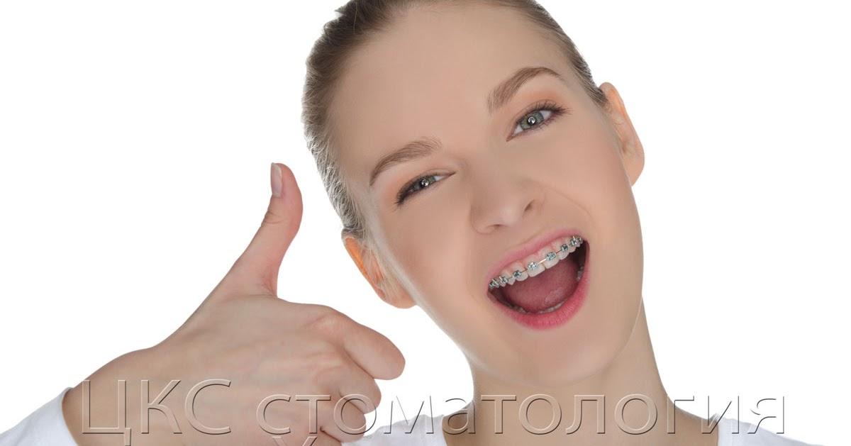 О стоматологии и не только...: Металлические брекеты