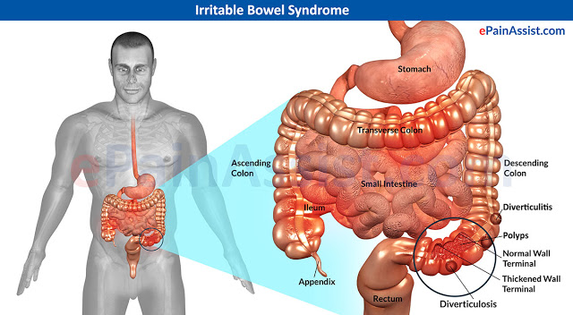 Irritable-Bowel-Syndrome