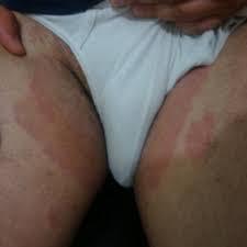 obat gatal pada selangkangan dan bokong akibat jamur