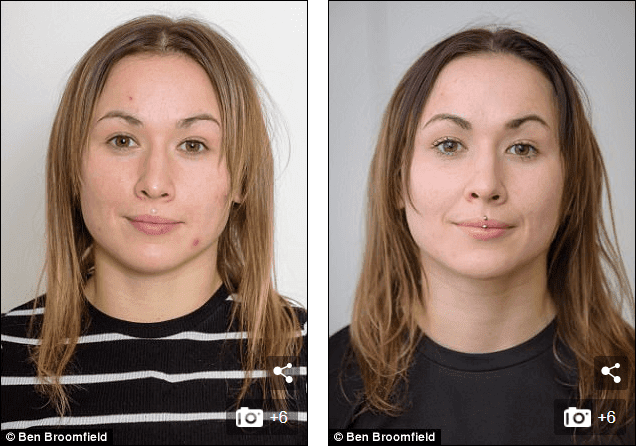Neutrogena light therapy for acne before and after 1