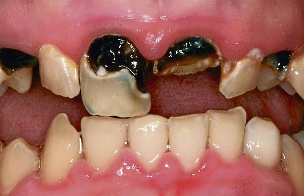 Image result for gigi rosak
