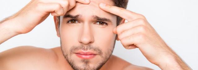 manfaat sabun cloris untuk menghilangkan dan mencegah jerawat