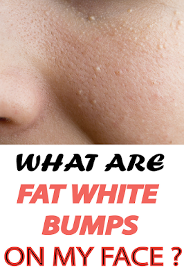 What are white fat bumps on my face ?