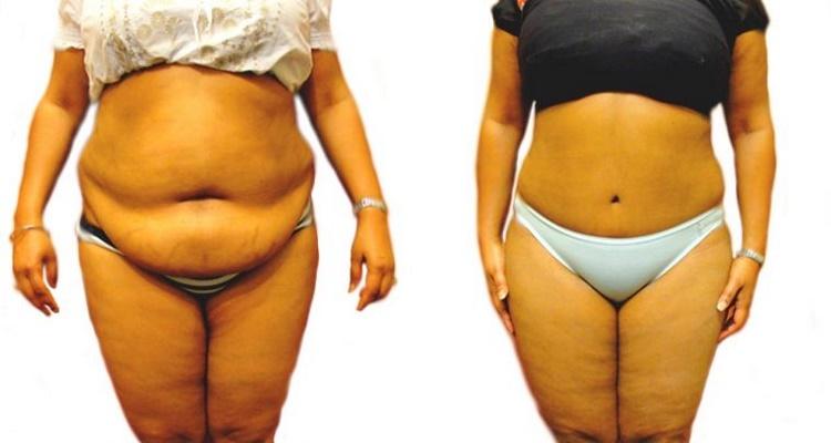 وصفة طبيعية قوية للتخلص من الوزن الزائد بمكون واحد فقط