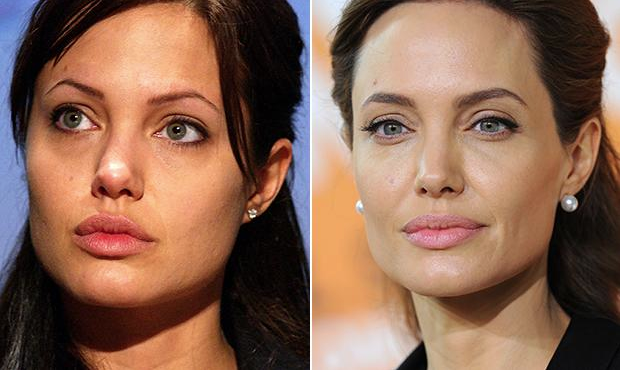 Angelina Jolies - fotos de famosas com micropigmentação na sobrancelha