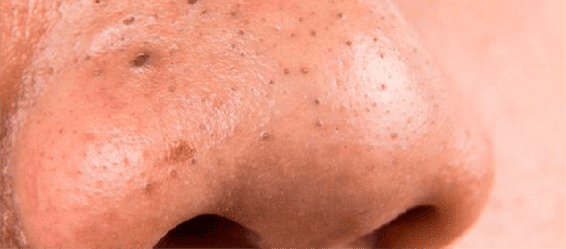 remedio para exfoliar la piel