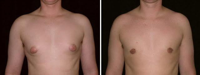 San Jose Before and After Adolescent Gynecomastia Surgery