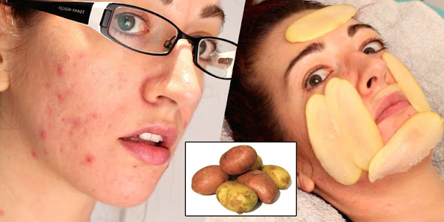 how to use potato on face in hindi