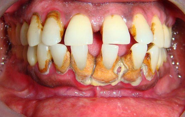 Cara Jitu Hilangkan Karang Gigi Secara Alami Informasi Okkay