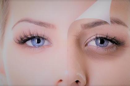 16 Cara Menghilangkan Kantung Mata Secara Alami