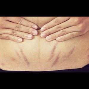 Photo of علاج تفاتيح الجلد خلال الحمل