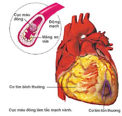 Bệnh mạch vành hay bệnh tim thiếu máu cục bộ