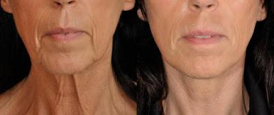 Eviter le relâchement du visage avec ces remèdes