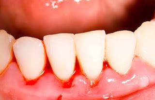 Diş fırçalarken diş eti kanaması