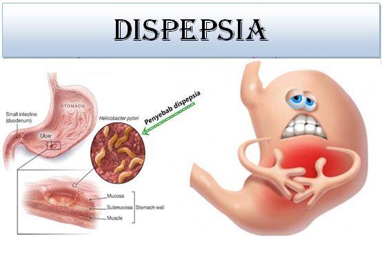 Dispepsia, Gejala Dispepsia, Penyakit Dispepsia