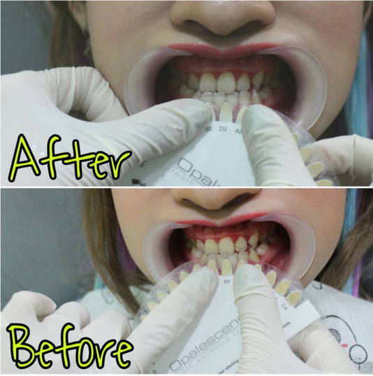 pengalaman bleaching gigi