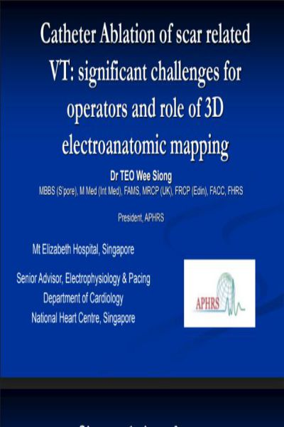 21   Catheter Ablation of scar related VT  significant challenges for operators and role of 3D electroanatomic mapping