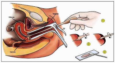 Prosedur Pap Smear