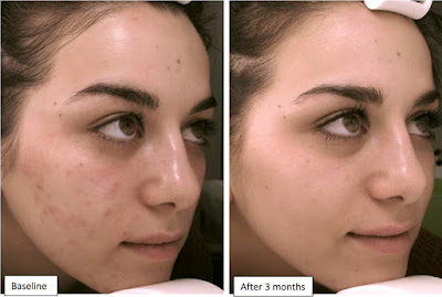 benzoyl peroxide for acne before and after photo 1