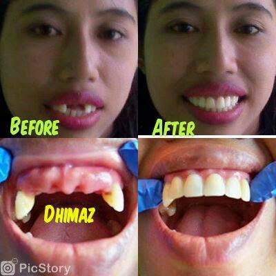 Dental Experts Jember Cara Mudah Merawat Gigi Palsu Lepasan Yang