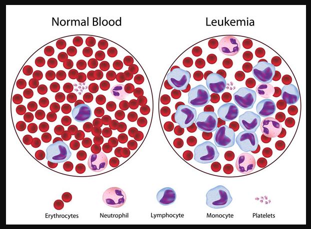 tanda dan gejala leukemia pada anak anak