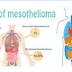 Standard And Experimental Mesothelioma Treatments