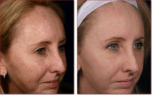 Facial Brown Spot 46
