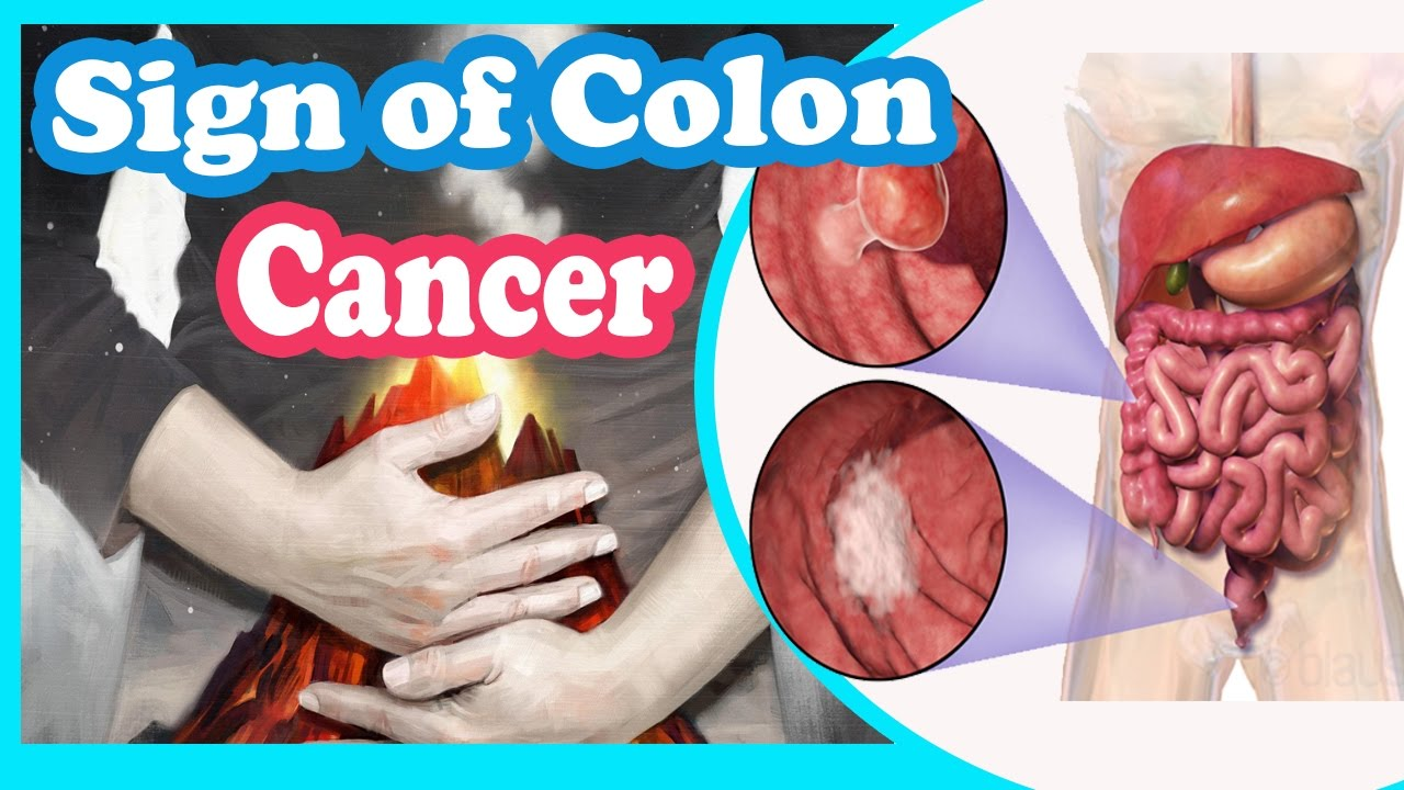 colon cancer, colorectal