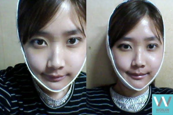 짱이뻐! - Welcome Ideal Face Thanks to Korea Face Contouring