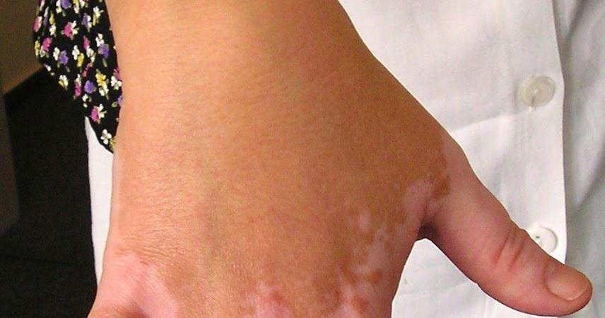 Ayurvedic Home Remedies For Leucoderma And Vitiligo   Home