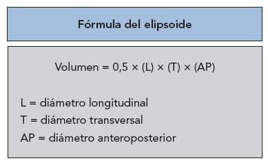 fórmula cálculo volumen vejiga con ecografía