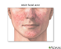 Nursing Care Plan for Acne