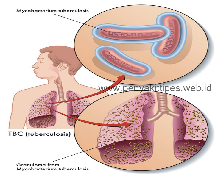 Penyebab Penyakit TBC