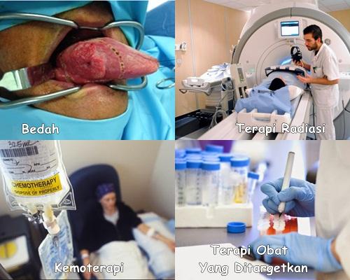 Cara Menyembuhkan Kanker Lidah, Ampuh Sembuhkan Kanker ...