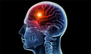 Obat Sakit Stroke Ringan, apa nama obat ampuh stroke berat?, Bagaimana Mengobati Penyakit Stroke Ringan?