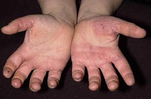 وصفة لعلاج تقشب اليدين